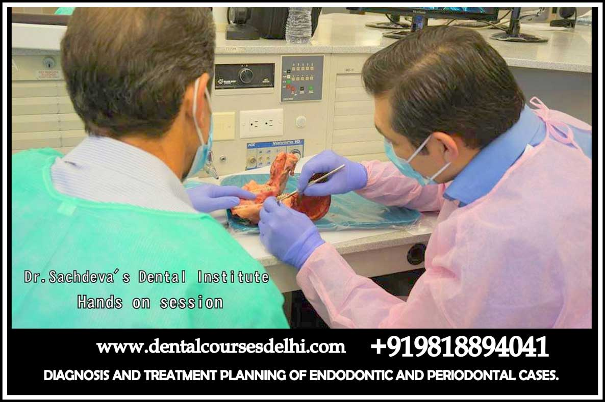 Dental Courses In Delhi,cosmetic dental surgery in delhi ,cosmetic dentist in delhi,Dental Implants Clinic in Delhi,cosmetic dentist delhi,dentist in delhi,dental implant courses in delhi,cost of tooth implant in delhi,tooth implant cost in delhi,cosmetic dentistry in delhi,dental clinic in delhi,laser dentistry courses in delhi,cosmetic dental surgery Delhi