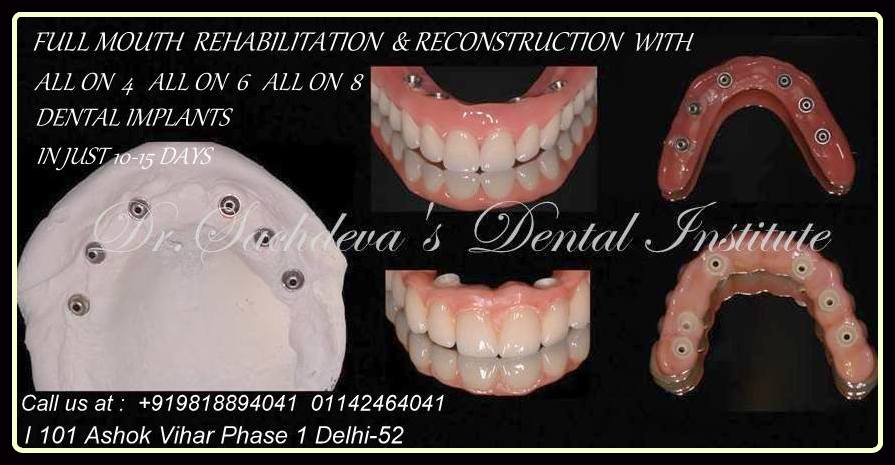 full arch implant
