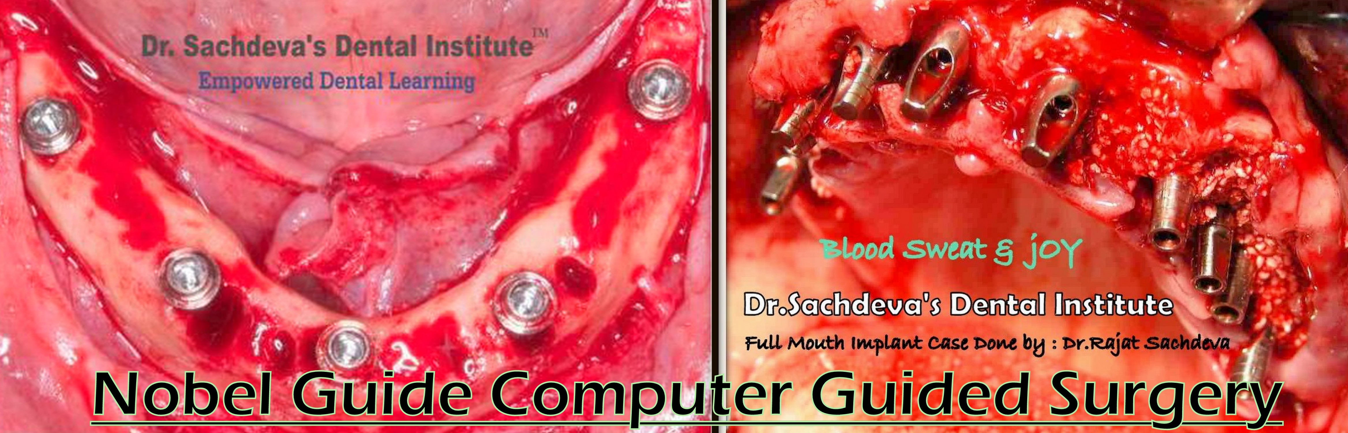 Nobel Guide Computer Guided Surgery