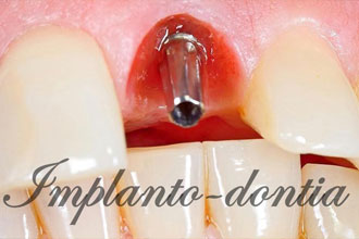 single teeth implants