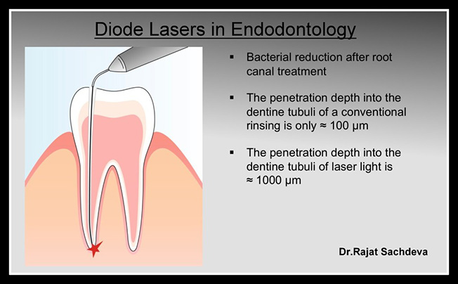 Laser Dentistry Clinic In India Laser Dentistry Clinic