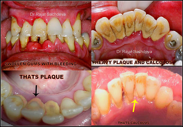 Gum Disease Treatment In India Disease And Treatment In