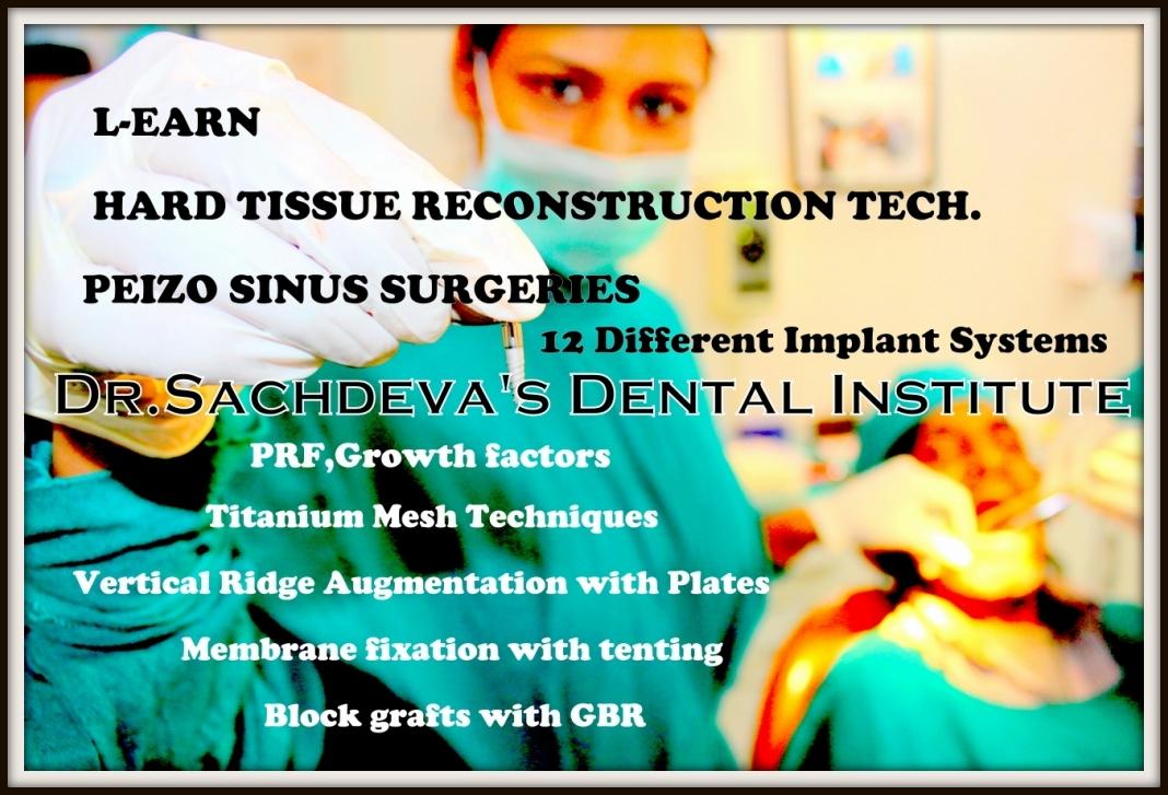 Implanto Dontia Course in India,Implanto Dontia Institute in Delhi