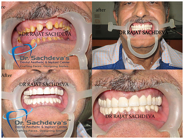 Permanent Dentures Cost In India >> Full Mouth Rehabilitation, Reconstruction Center  Neuromuscular Dentistry India