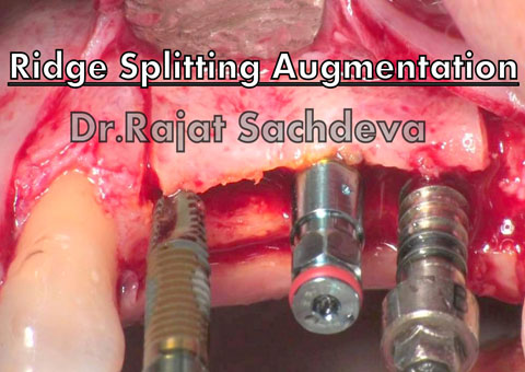 Ridge splitting for lateral ridge Augmentation