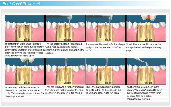 Root Canal Treatment In Delhi India