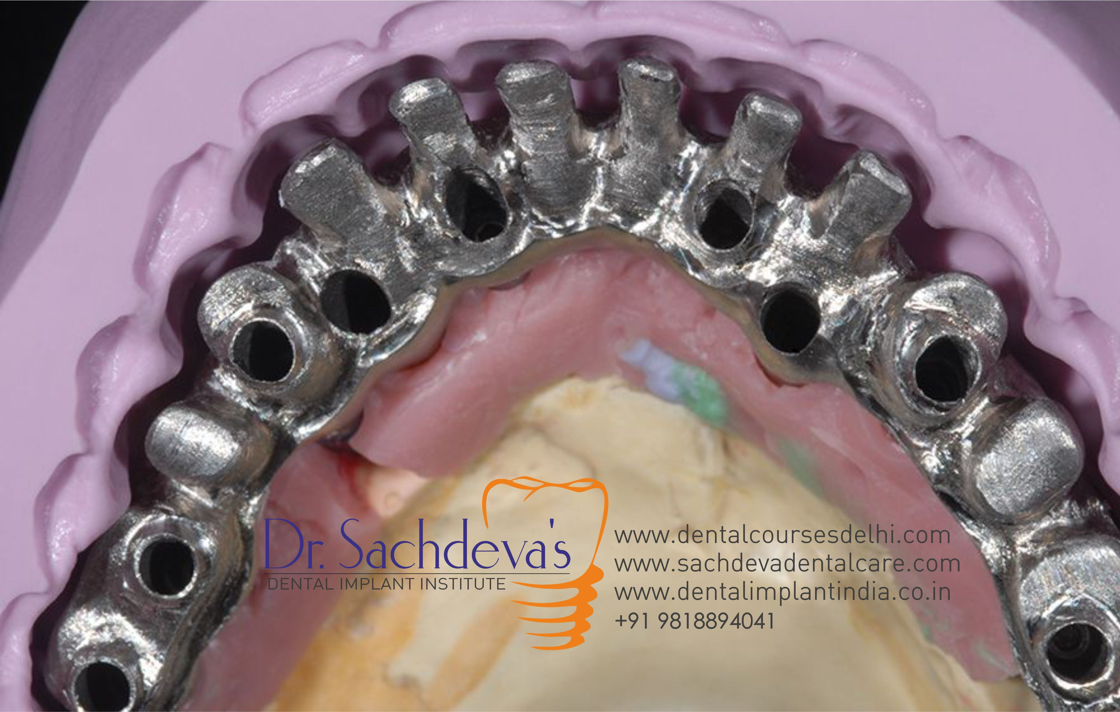 all on 8 dental implant