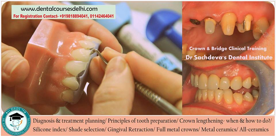 Dental Crown Bridges Veneers Procedure India