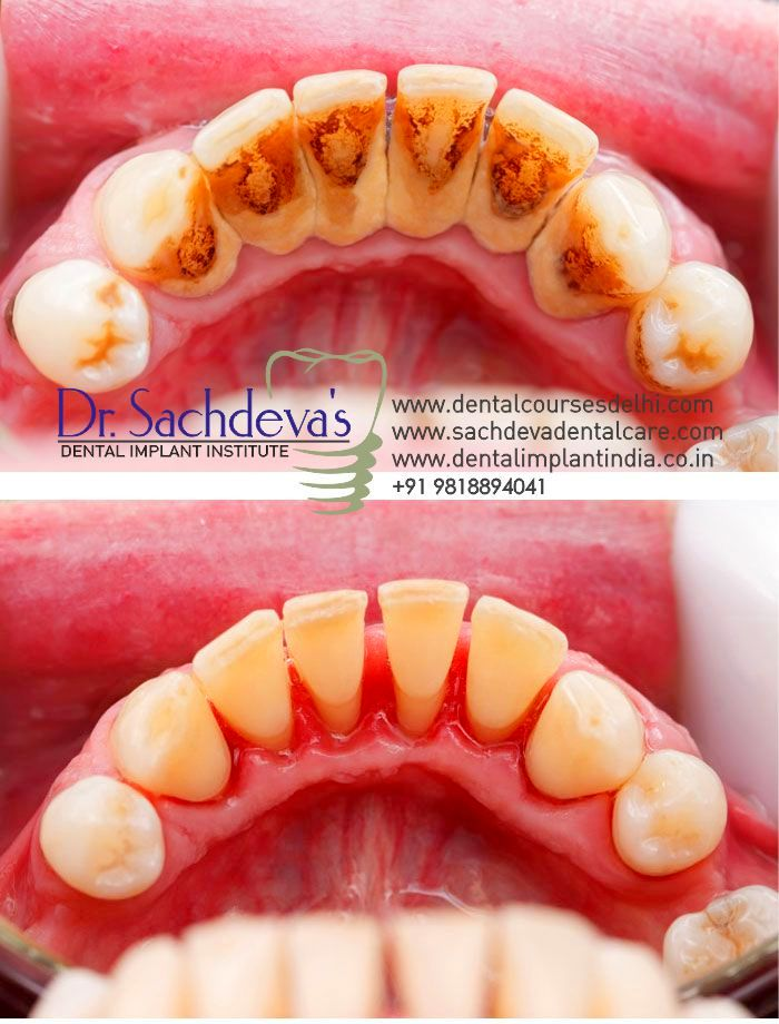 Teeth Deep Cleaning Treatment Delhi India